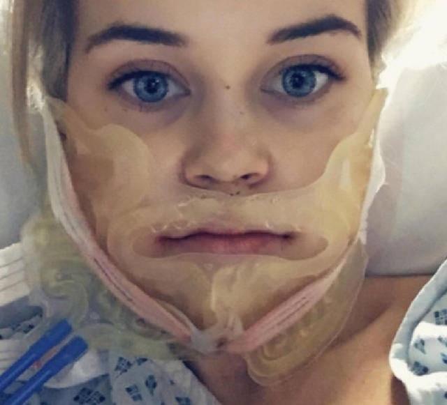 Пластические хирурги изменили жизнь этой девушки