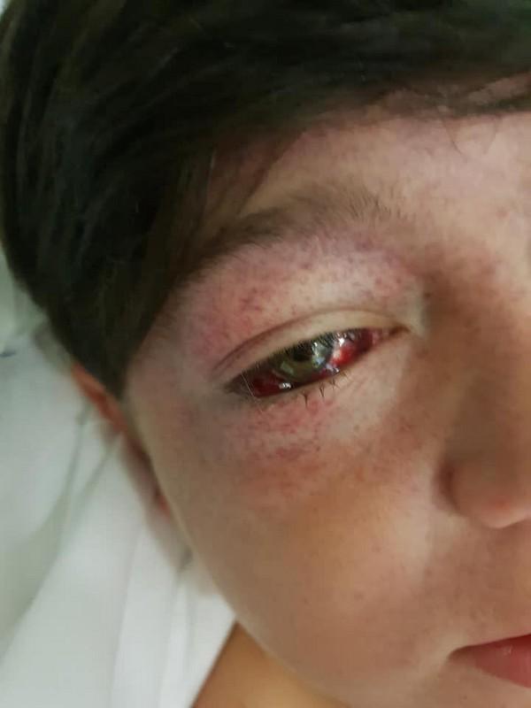 Вылезшие из орбит глаза, распухшая голова и угроза инсульта: 11-летний пацан прокатился на карусели на дикой скорости